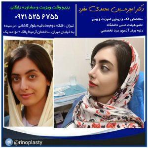 بهترین جراح بینی در تهران ، دکتر امیرحسین محمدی مفرد