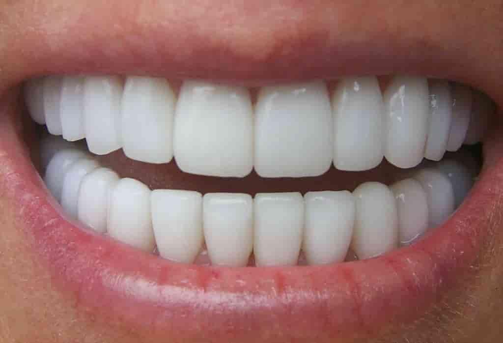 در مورد ایمپلنت دندان بیشتر بدانید