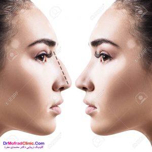 ترس از بیهوشی و درد قبل از عمل بینی