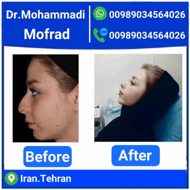 Nasal Cosmetic Surgery Dr. Amir Hossein Mohammadi Mofrad
