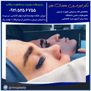 نمونه جراحی بینی دکتر امیر حسین محمدی مفرد