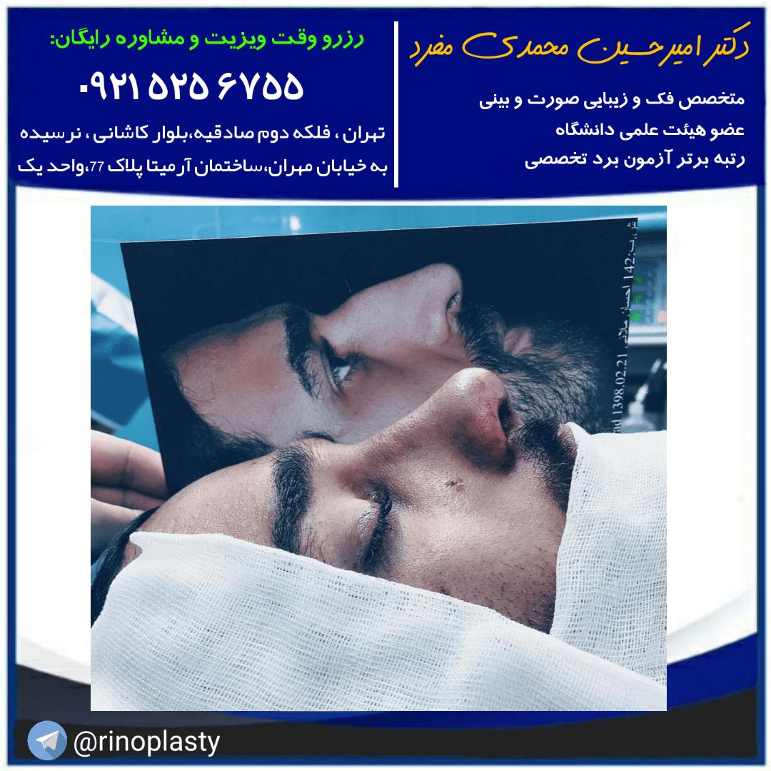 انواع بیهوشی در جراحی بینی