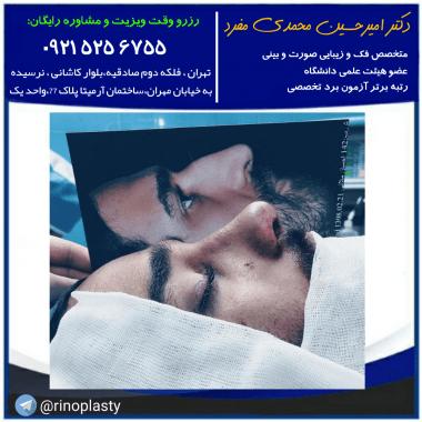 نمونه کار بینی دکتر امیرحسین محمدی مفرد