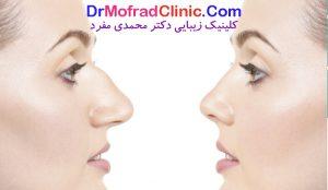 بهترین جراح ترمیمی بینی در تهران