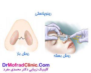 تفاوت جراحی بینی باز با جراحی بینی بسته