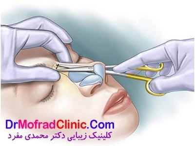 جراحی بینی باز یا بسته