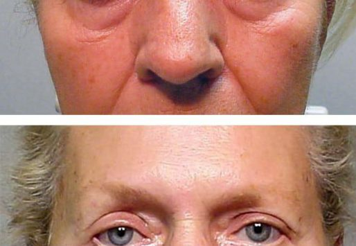 Who is a good candidate to Blepharoplasty