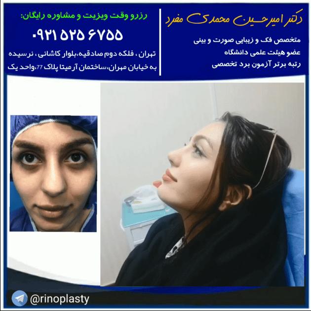 جراحی زیبایی بینی دکتر محمدی مفرد