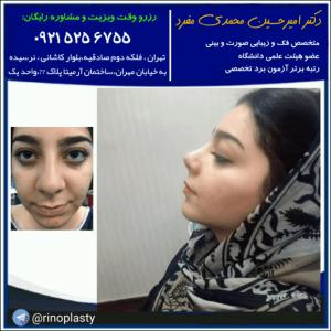 درمان میگرن با جراحی بینی