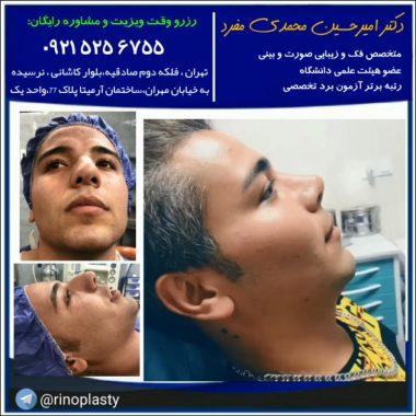 عمل زیبایی بینی دکتر محمدی مفرد