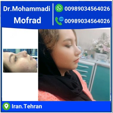 semi fantasy nose by dr.mohammadimofrad