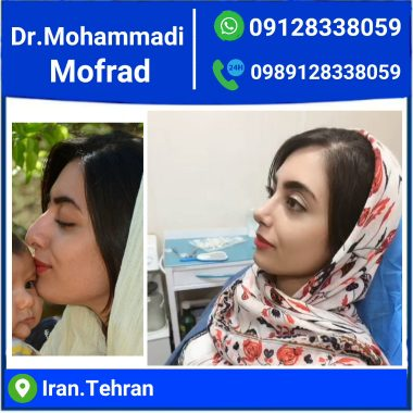 semi fantasy nose model by dr.mohammadimofrad