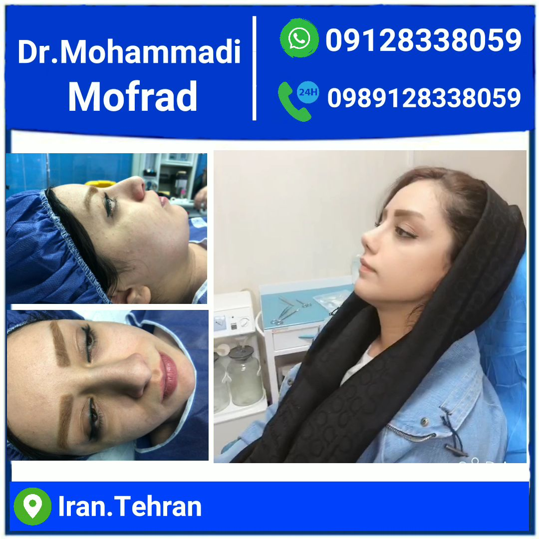 nose job by dr.mohammadimoftofrad
