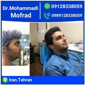 best Male Rhinoplasty Surgeon