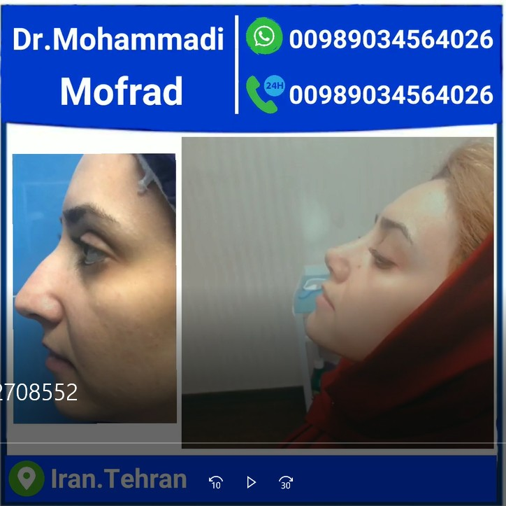 drmohammadimofrad