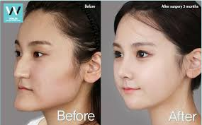 Who IS A good candidate for Jaw reduction
