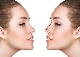rhinoplasty,nose reshaping,nose job