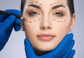 Cost of Eyelid Surgery or Blepharoplasty in Iran