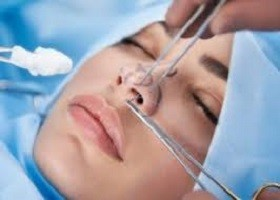 Cost of Bulbous Tip Nose Surgery
