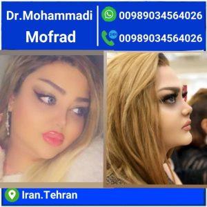 بهترین جراح بینی های استخوانی و گوشتی در تهران کیست؟