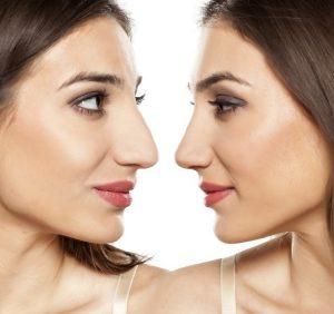 سوالاتی که باید قبل از جراحی زیبایی بینی از خود بپرسید