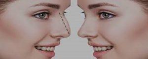 تاریخچه جراحی کوچک کردن بینی