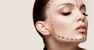 Genioplasty or chin surgery