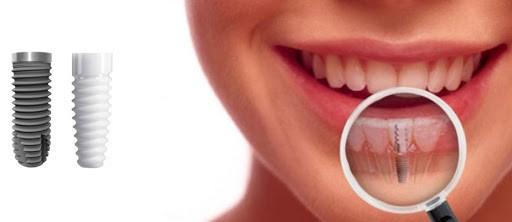 Paranasal Medpor implants