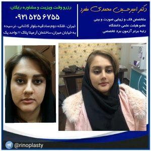 بهترین جراح بینی ، بهترین جراح بینی در تهران ، دکتر امیرحسین محمدی مفرد
