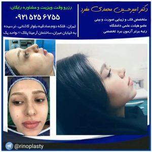 آلرژی و حساسیت قبل و بعد عمل بینی