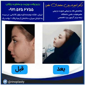 جراحی بینی در افرادی که آسم دارند