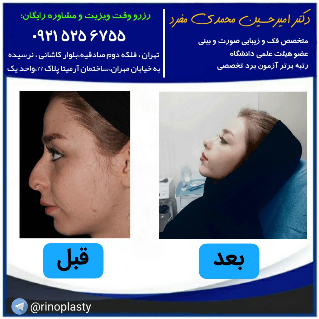مزایا و معایب جراحی زیبایی بینی