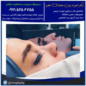 کرونا و جراحی بینی