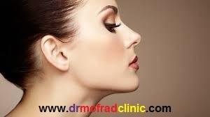 عضروف مصنوعی یا پروتز در جراحی بینی