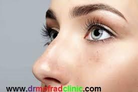 کبودی چشم بعد از جراحی بینی