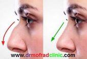 جراحی بینی چقدر طول میکشد؟