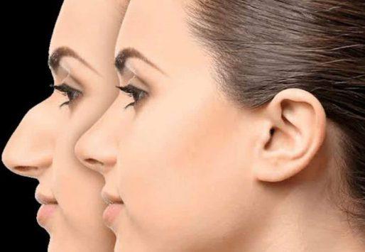مشاوره قبل از جراحی بینی