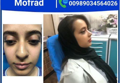 ?Uneven nostrils,How to fix uneven nostrils