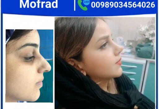 Lip lift surgery with Dr.Mohammadimofrad