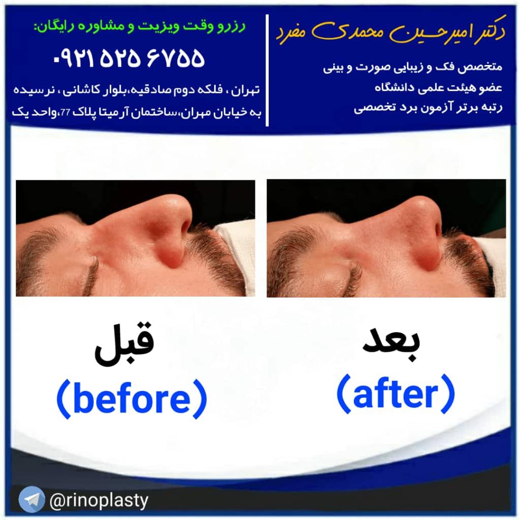 جراحی بینی به روش باز یا بسته