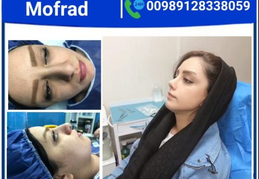 Cast removal after rhinoplasty