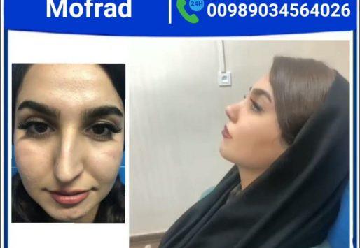 بهترین جراح بینی فانتزی در تهران