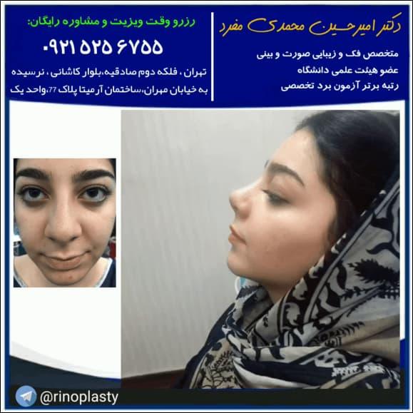 بهترین جراح بینی نیمه فانتزی در تهران کیست ؟