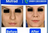 every thing about thin skin rhinoplasty