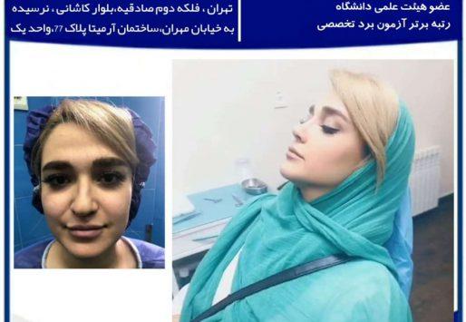 بهترین جراح بینی در تهران ، انتخاب بهترین جراح بینی