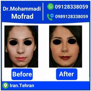 بهترین جراح بینی نیمه فانتزی در تهران + مشاوره رایگان