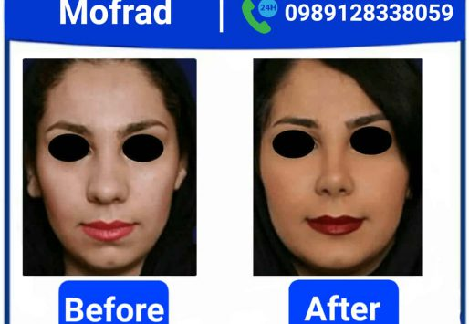 ?Is there scarring,risk or danger after a nose job
