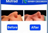 ?WHY DOES THICK SKIN CAUSE PROBLEMS IN RHINOPLASTY