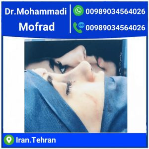 Cat eye surgery,the best eyelid surgeon in IRAN