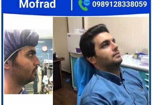 nasal nose massage after rhinoplasty